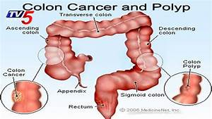 Colon Cancer  Causes  Symptoms  And Treatments