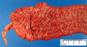 inflammatory bowel diseases - Humpath.com - Human pathology