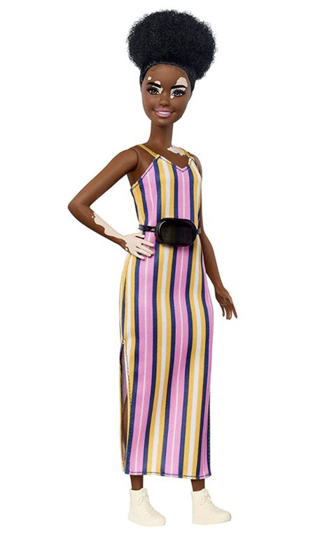 barbie introduces doll  vitiligo   diverse