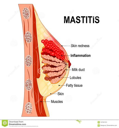 Mastitis Cross Section Of The Mammary Gland With