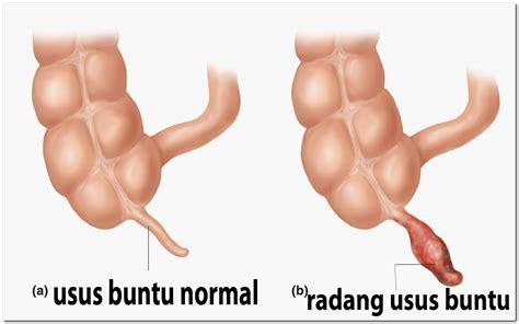 gejala penyebab obat radang usus buntu atau apendisitis