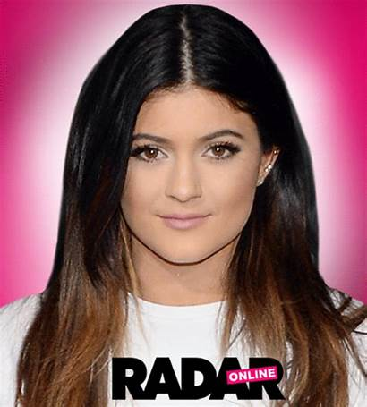 Kylie Jenner Surgery Plastic Before Makeover Face