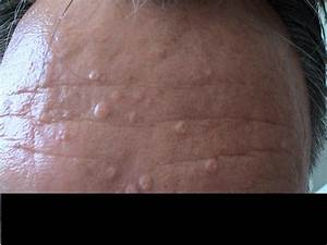 BENIGN SKIN LESIONS, NEVI, CYSTS - Hyperplasia of the ...