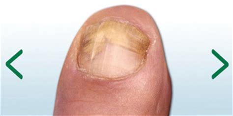 nagelpilz behandlung  hilft wirklich gegen nagelpilz