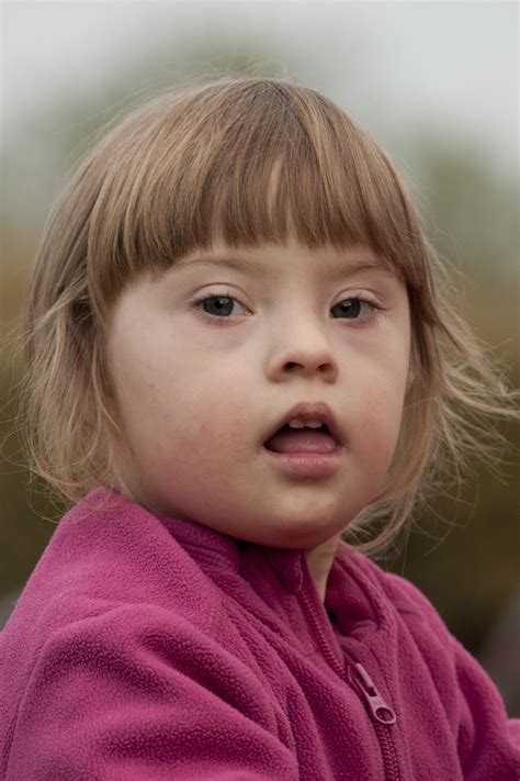 Down Syndrome - Gluten Free Works: TREATMENT GUIDE