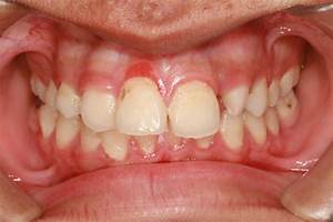 Your oral health impacts your overall health | Berrien ...