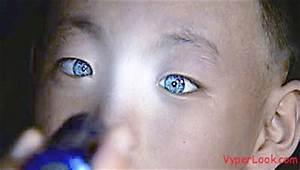 Cat-eyed Chinese Boy With Night Vision Superpower | Odd ...