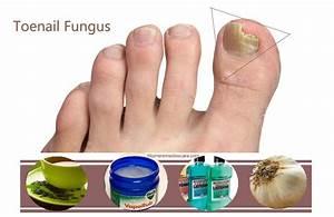 Грибок на больших ногтях на ногах как лечить в домашних условиях
