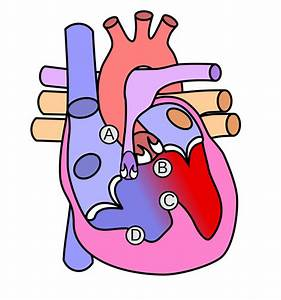 File Heart Tetralogy Fallot Svg