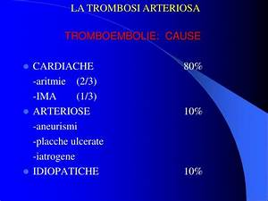 Aritmie cauze