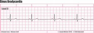 ECG Educator Blog : Sinus Bradycardia
