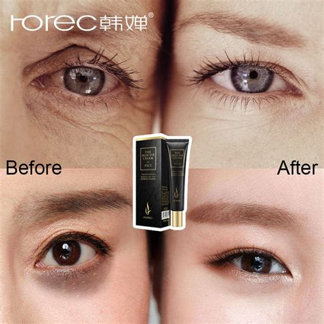 ROREC Hyaluronic Acid Eye Cream Anti Wrinkle Remover Dark