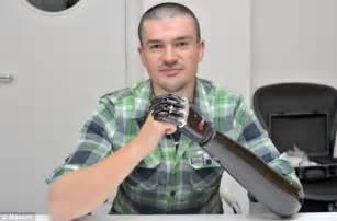 man born without hand has terminator style bionic limb