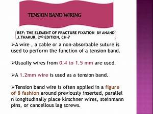 Principle Of Tension Band Wiring N Its Application
