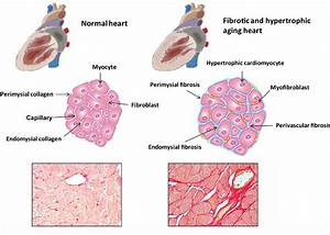 Fibrosis Of The Aging Heart  Cardiac Aging Is Associated