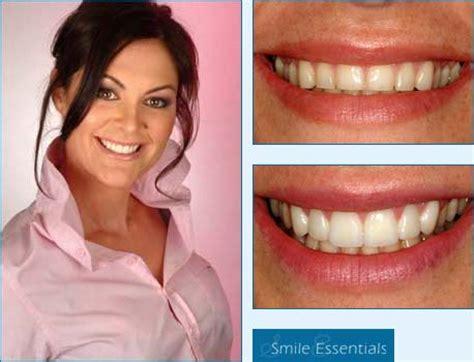 veneer cost family dentistry veneers cost