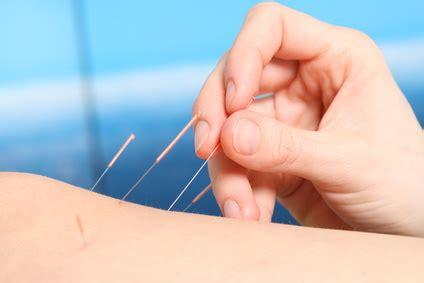 acupuncture pour maigrir minceur 187 archive 187 acupuncture pour maigrir ou