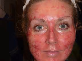 Fluorouracil as related to Skin Cancer - Pictures