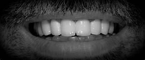 Proteza dentara scheletata