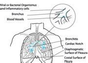 chronic obstructive pulmonary disease  full wiki