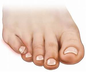 Overlapping Toes - Causes, Treatment, and Surgery