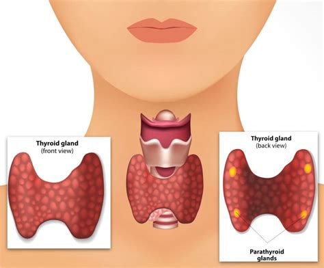 home remedies  thyroid problems  active