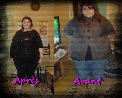 Blog De Aurelays-bypass
