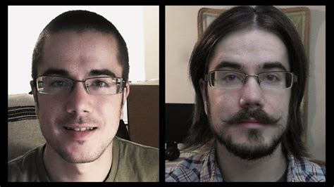 12 month hair growth time lapse