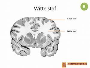 Mysterie van witte stofafwijkingen in de hersenen verder ontrafeld