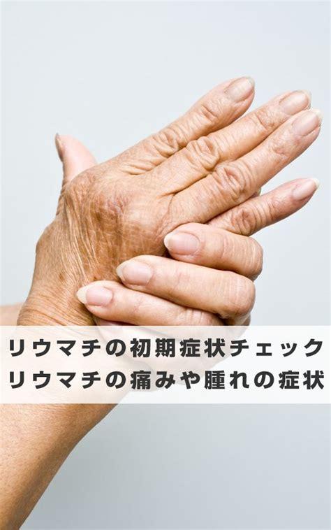 リウマチ 初期 症状