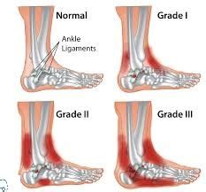 sprained ankle  types diagnosis treatment drugs