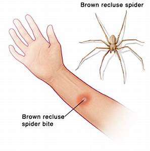 Brown Recluse Spider Bite | Articles | Mount Nittany ...