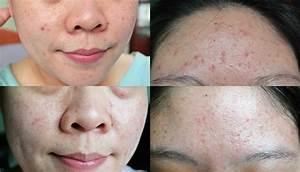 pommade acné