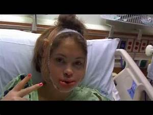 Underbite Jaw Surgery - before & after - YouTube