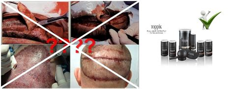 Toppik And Hair Transplant In Malaysia