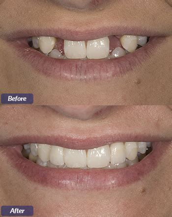 dental implants   rock arkansas smile arkansas