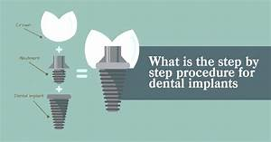 Step By Step Guide To Dental Implants Loughborough