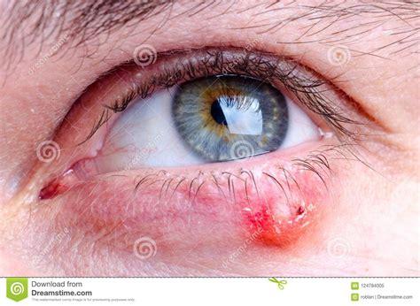 einheimische vögel bilder vagelhordeolumsjukdom p 229 246 ga av en caucasian kvinnlig fotografering f 246 r bildbyr 229 er bild av