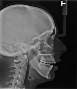 Broken Jaw X Ray | www.imgkid.com - The Image Kid Has It!