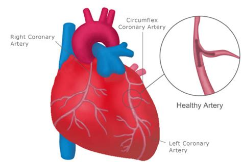 (a) the heart is primarily made of a thick muscle layer, called the myocardium, surrounded by membranes. 7 Deadly Effects of Type 2 Diabetes on Health