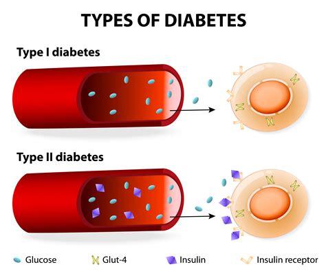 Dt1 Et Dt2  Fondation Pour Enfants Diabétiques