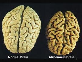 Image result for Alzheimer's Brain
