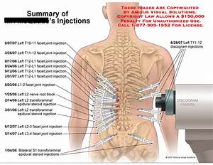 Amicus Illustration Of Amicus Medical Summary Injections