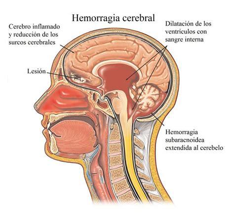 dolor de nuca  cabeza cuello hombros espalda causas