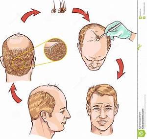 Hair Transplantation Stock Vector  Illustration Of Step