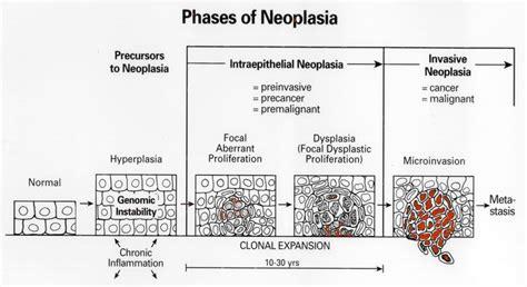 jamesbacus.com Neoplastic Progression