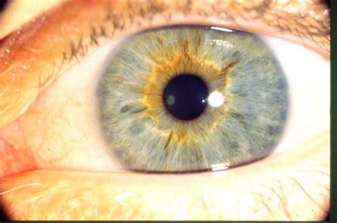 iridology yellow ring  pupil
