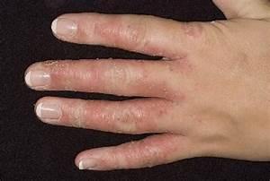 Метронидазол грибок пальцев ног