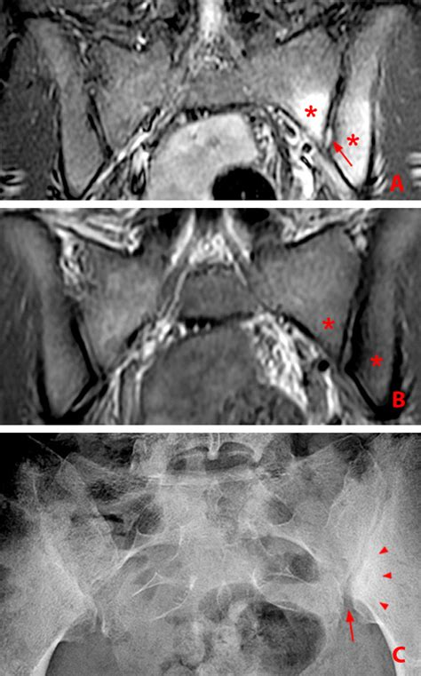 unilateral pain hip differential spondylitis ankylosing analysis related radsource diagnosis
