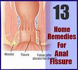 Natural remedy for anal fissures